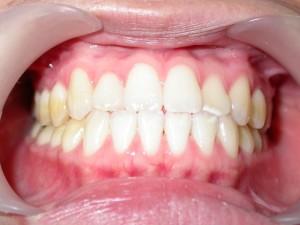 dente-smile-clinic-001