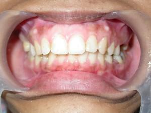 dente-smile-clinic-004