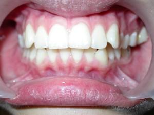 dente-smile-clinic-006