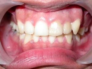 dente-smile-clinic-007