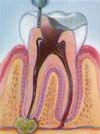 Dental Root Canal / Endodontic